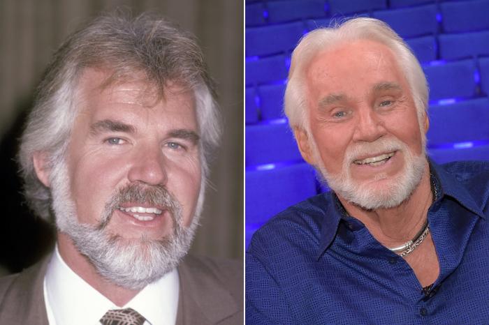 До и после: Кенни Роджерс.