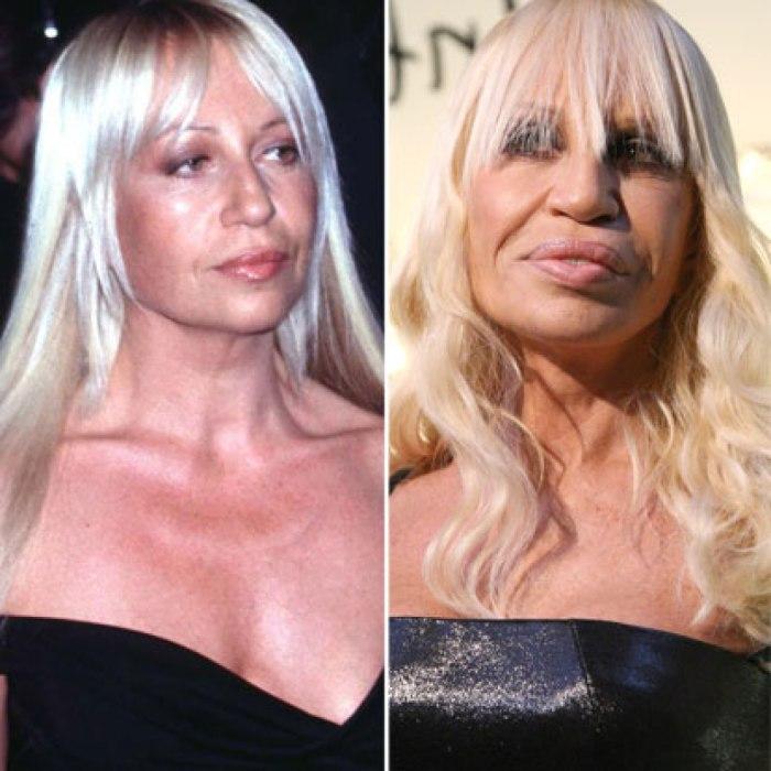 До и после: Донателла Версаче.