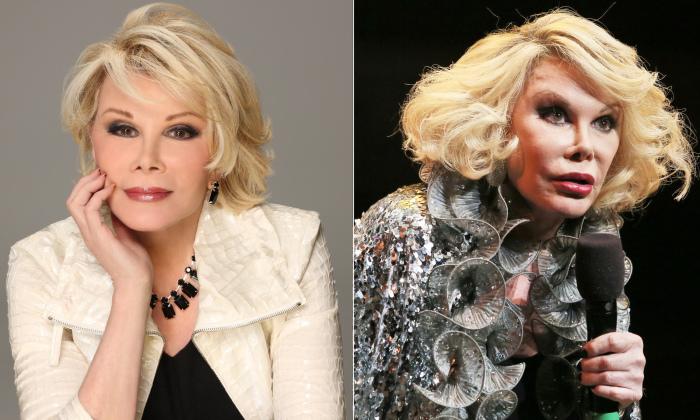 До и после: Джоан Риверс.