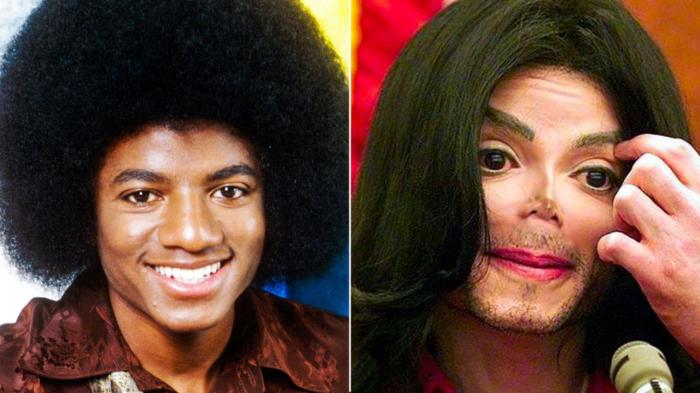 До и после: Майкл Джексон.