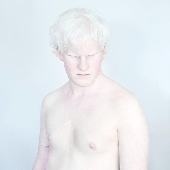 Мужчина альбинос. Фото Sanne De Wilde.