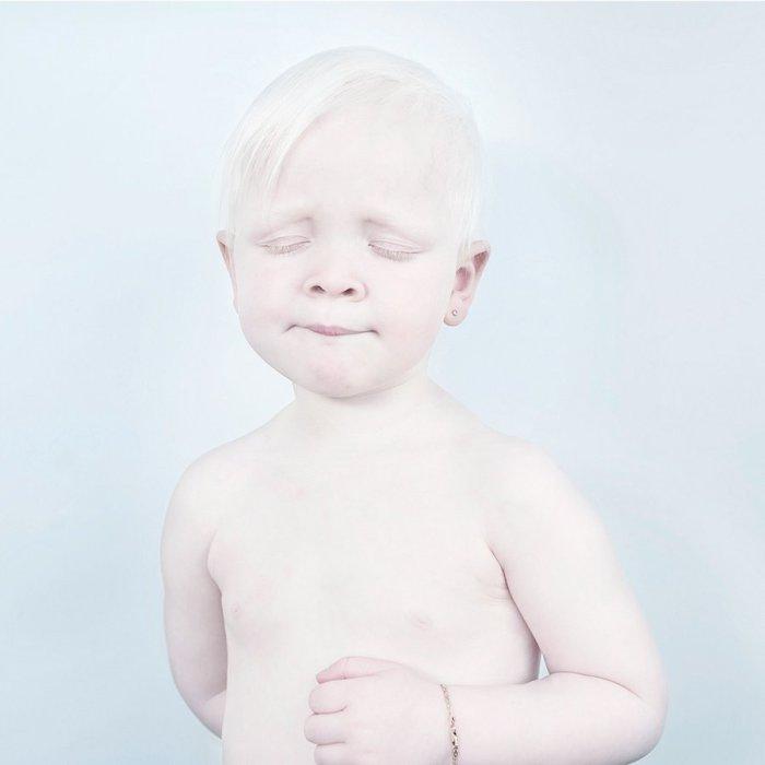 Снежно-белый ребенок. Фото Sanne De Wilde.