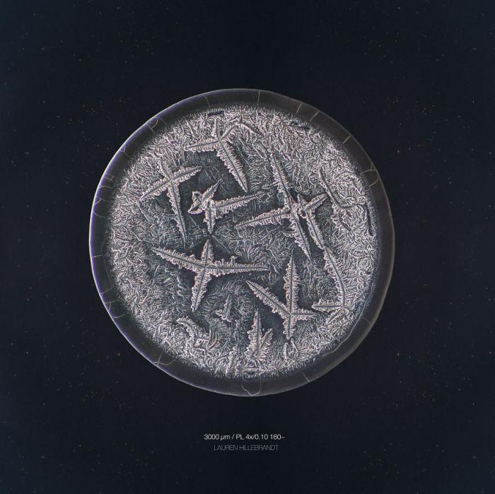 Апатия. Слёзы под микроскопом. Автор фото: Maurice Mikkers.