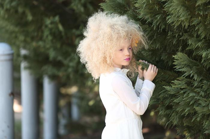 Юная модель-альбинос, успевшая покорить миллионы сердец.