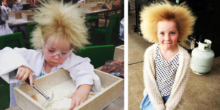 Девочка выглядит как дочь какого-нибудь безумного гения, а всё из-за редкого синдрома нерасчесывающихся волос.