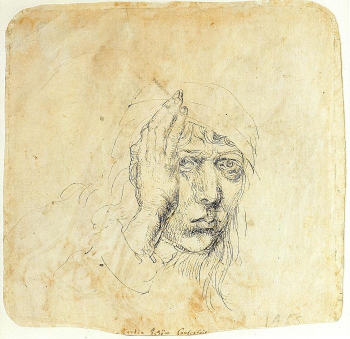 Автопортрет с бинтом, Альбрехт Дюрер, 1492 год. \ Фото: blogspot.com.