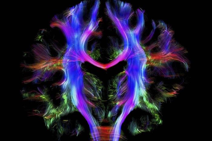 Волокна, связывающие левое и правое полушария -красные, а волокна, соединяющие головной и спинной мозг - синие. Автор фотографии: Alfred Anwander.