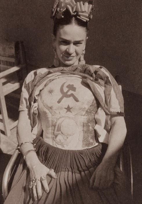 Фрида в разрисованном гипсовом корсете с коммунистической символикой.