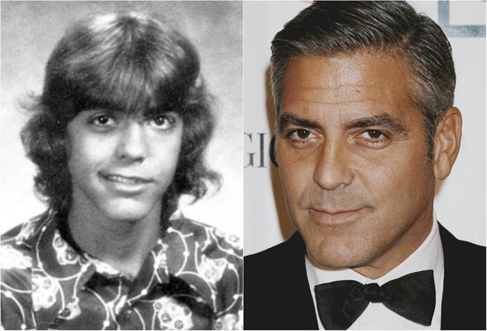 Дела пошли совсем плохо, когда Клуни в возрасте 13 лет столкнулся с параличом Белла, при котором лицо оказывается частично парализованным. Это событие стало большим поводом для насмешек со стороны одноклассников и даже закрепило на время за будущим актером обидную кличку «Франкенштейн».