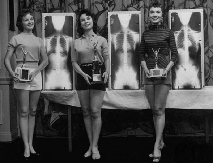 """В Чикаго был проведен необычный конкурс """"Мисс идеальная осанка"""". 1956 год."""