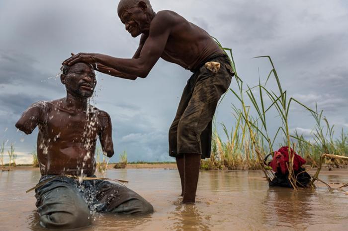 41-летний Юсуф Шабани Дифика утратил обе руки, в момент нападения льва во время рыбалки в национальном парке Селус, Танзании. Заповедник никак не огорожен, поэтому люди, проживающие в его окрестностях, постоянно подвергаются опасности. Из серии «Поругание рая», март 2013 года. Фотограф Brent Stirton.