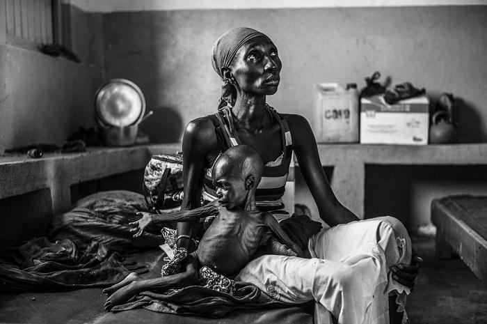 19-летняя мать и 2-летний сын лечатся от недоедания, Судан.