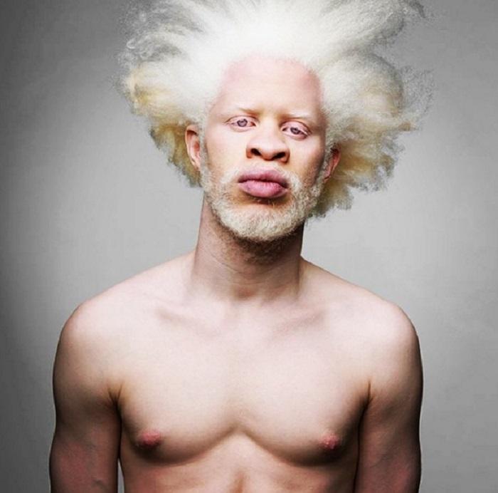Модель-альбинос.