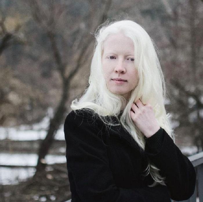 Молодая модель-альбинос из Болгарии.