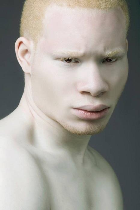 Модель-альбинос, поражающий своим взглядом.