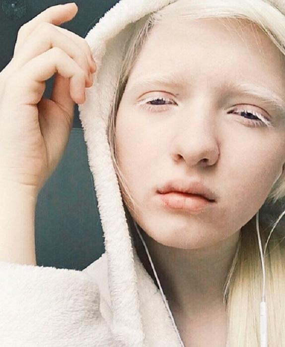 Молодая русская модель-альбинос с очень интересной внешностью.