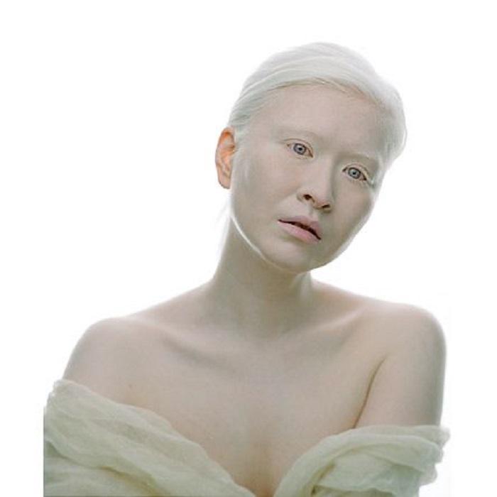 Китаянка Конни стала первой девушкой с альбинизмом, которую признала модная индустрия.
