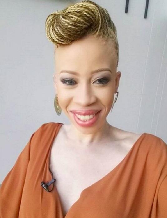 Южно-африканская модель-альбинос, ставшая звездой интернета и обложек модных журналов.