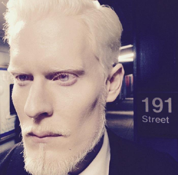 Стивен Томпсок альбинос-афроамериканец с особенно своеобразной внешностью является успешной моделью агентства Major Model Management в Нью-Йорке.
