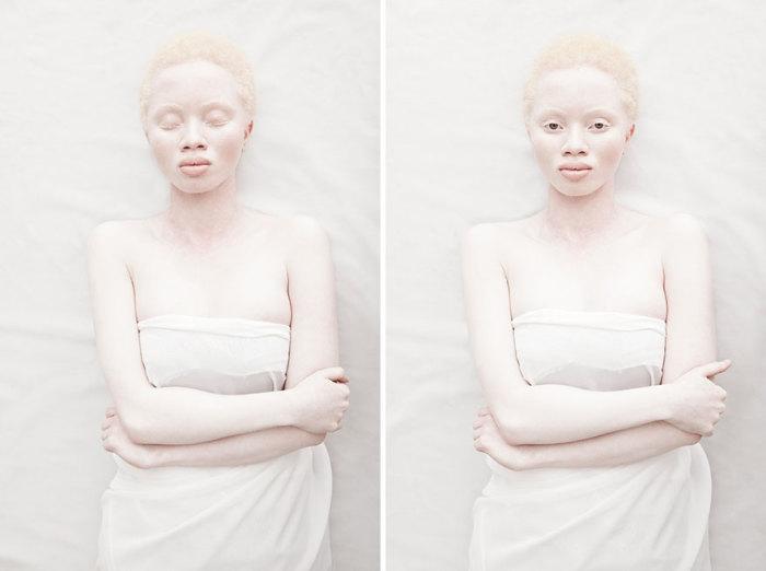 24-летняя модель стала эталоном красоты в мире моды.