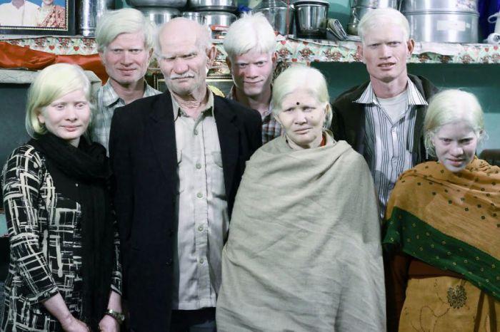 Самая большая семья альбиносов.