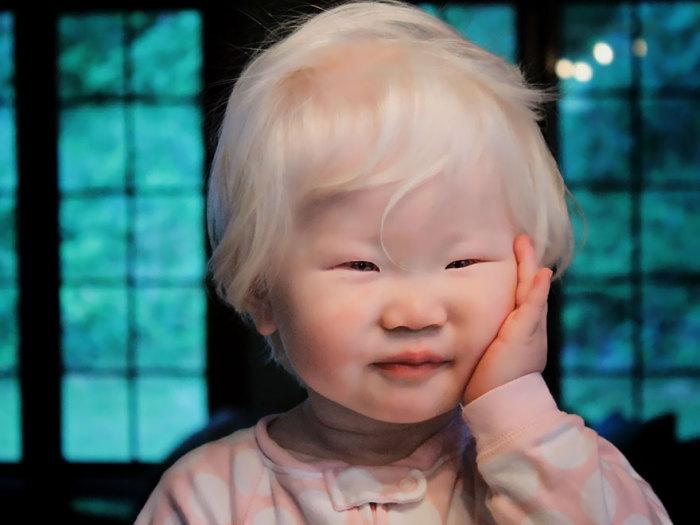 Необыкновенная внешность ребенка притягивает взоры окружающих людей.