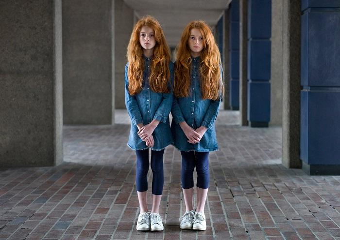 Рыжие сестрички утверждают, что их мощная связь позволяет им чувствовать боль друг друга.