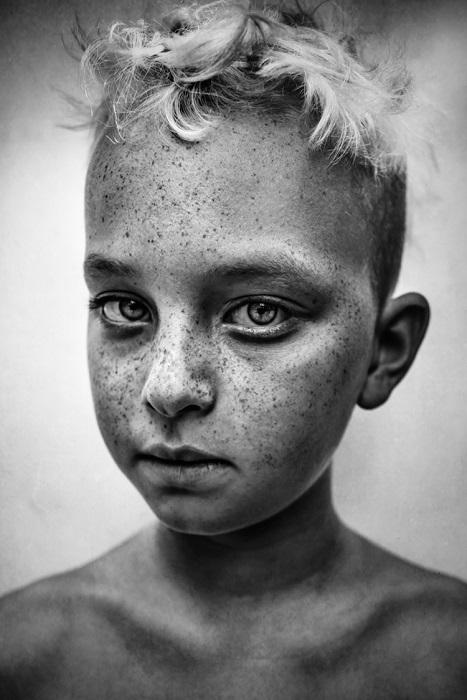 Победитель в категории «Портрет». Автор фотографии: (Lee Jeffries) Ли Джеффрис. Великобритания.