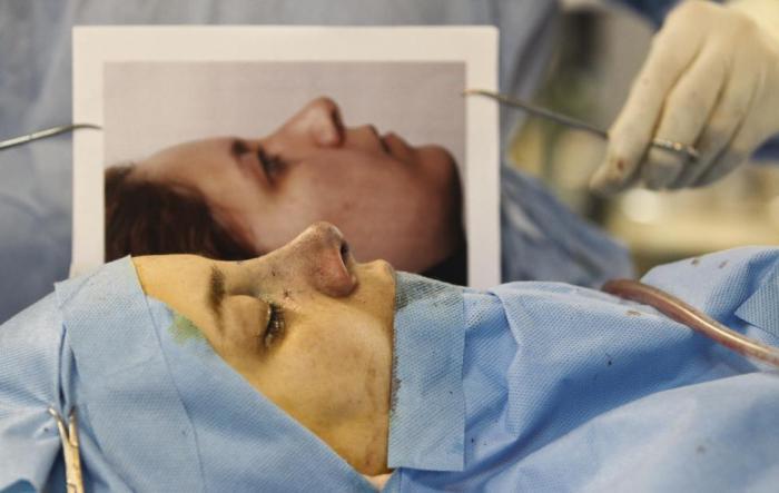 Иранский пластический хирург Али Манафи сравнивает фото носа пациентки до операции с полученным результатом.