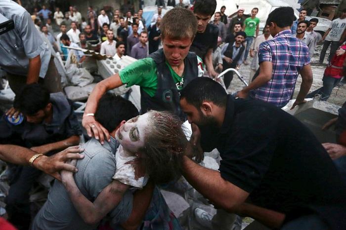 Мужчина держит раненую девушку, спасённую из-под обвала, спровоцированного бомбёжками проправительственных сил Сирии в пригороде Дамаска.
