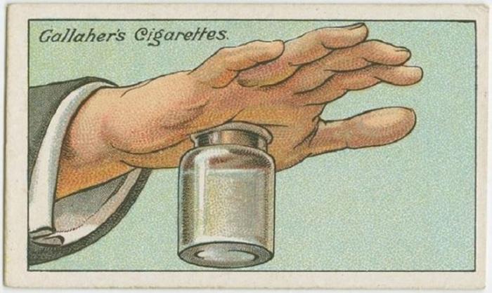 Заполните бутылку с широким горлышком горячей водой и плотно прижмите к ней руку. Сила всасывания будет оттягивать кожу руки и вытянет занозу.