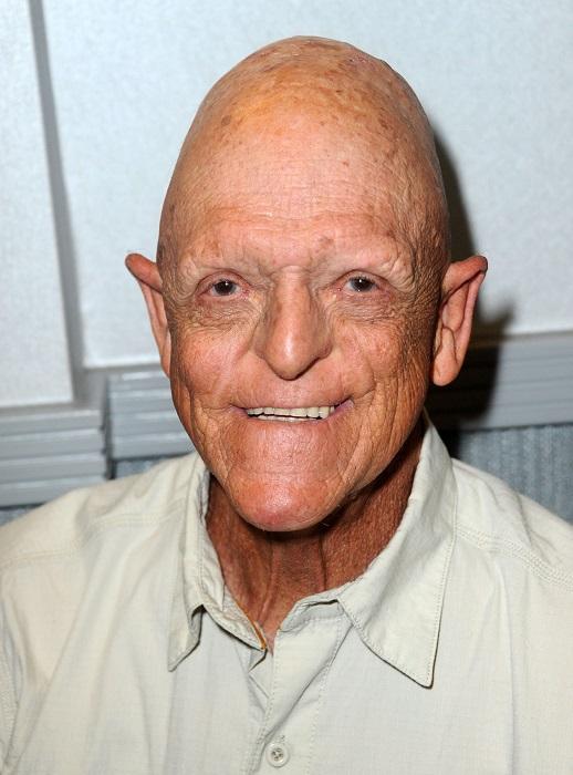 Американский актёр со специфической внешностью (наличие наследственного заболевания) сыграл в фильмах ужасах и фэнтези. /Фото: megogo.net