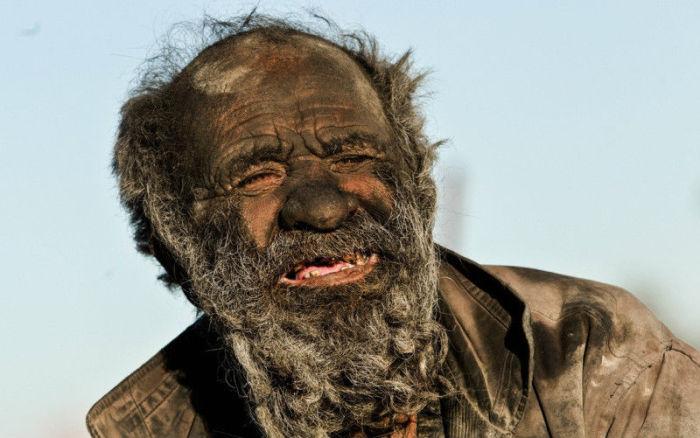 Шокирующие фотографии самого грязного человека в мире.