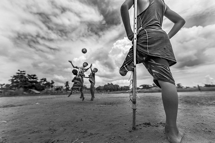 Похвальные отзывы за снимок получил фотограф Зарни Мио Вин (Zarni Myo Win) из Мьянмы, который запечатлел одноногого мальчика, наблюдающего за игрой в футбол.