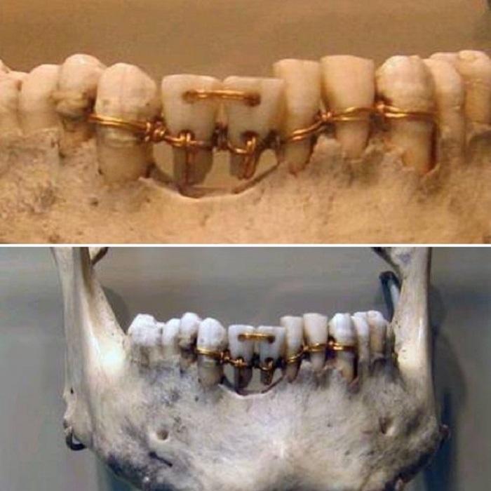 Вот так лечили зубы в древние времена.