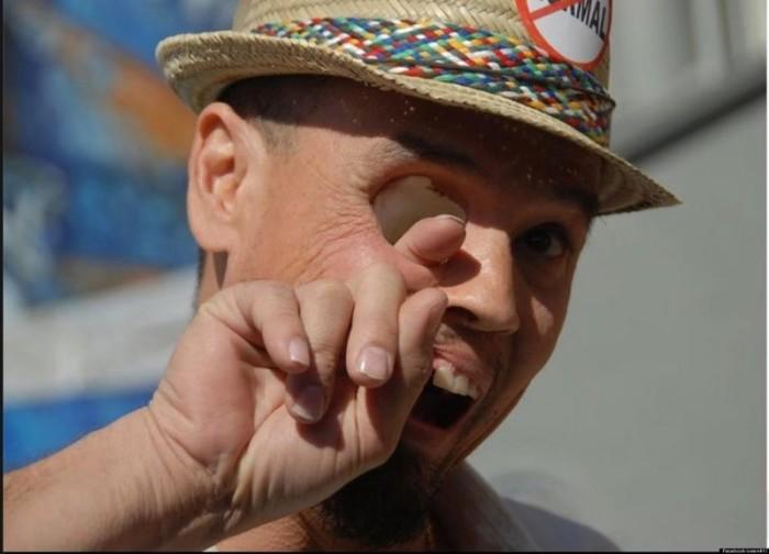 В результате операции, проведенной из-за болезни, мужчине фактически удалили половину лица, зато теперь он запросто может просовывать палец через глазницу.