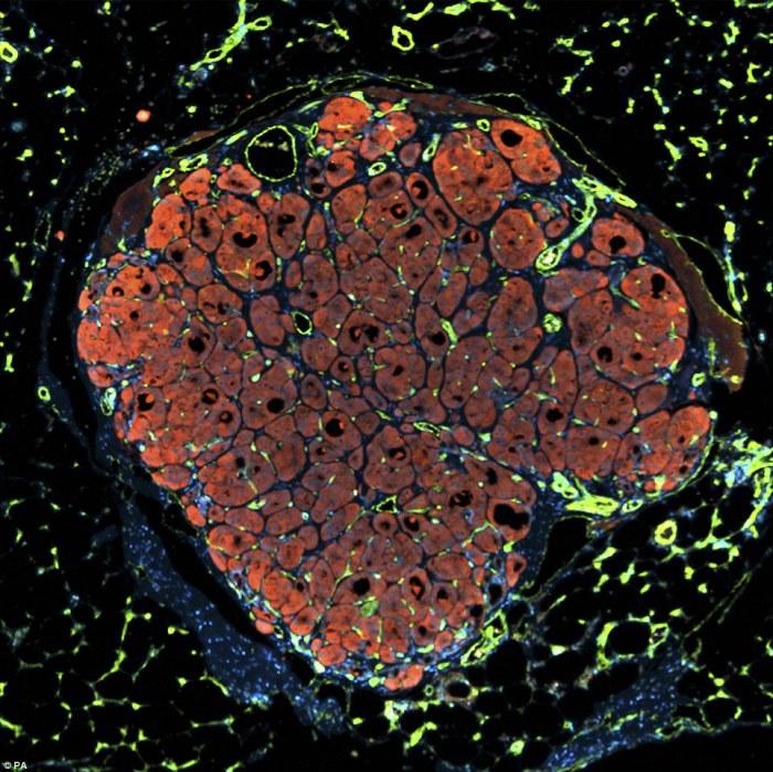 Небольшая часть человеческой печени была введена в поврежденную печень мыши. Авторы фотографии: Chelsea Fortin, Kelly Stevens and Sangeeta Bhatia.