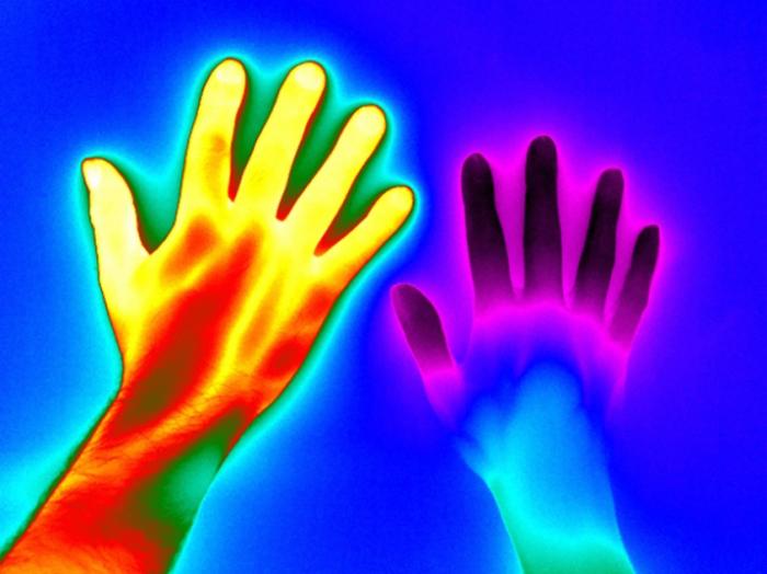 Слева - рука здорового человека, справа - с болезнью Рейно. Автор фотографии: Matthew Clavey.