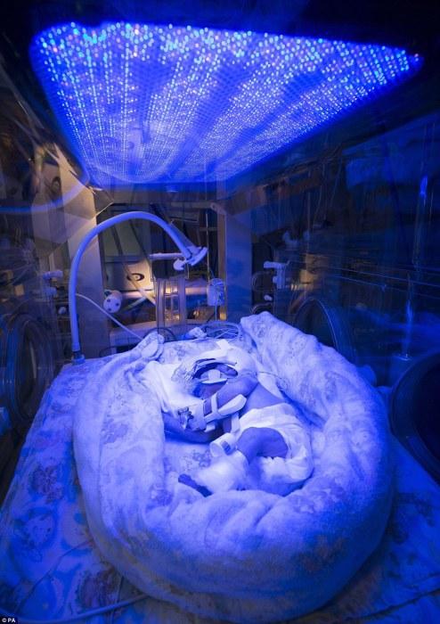 Недоношенный ребенок, родившийся с желтухой, во время светотерапии. Автор фотографии: David Bishop.