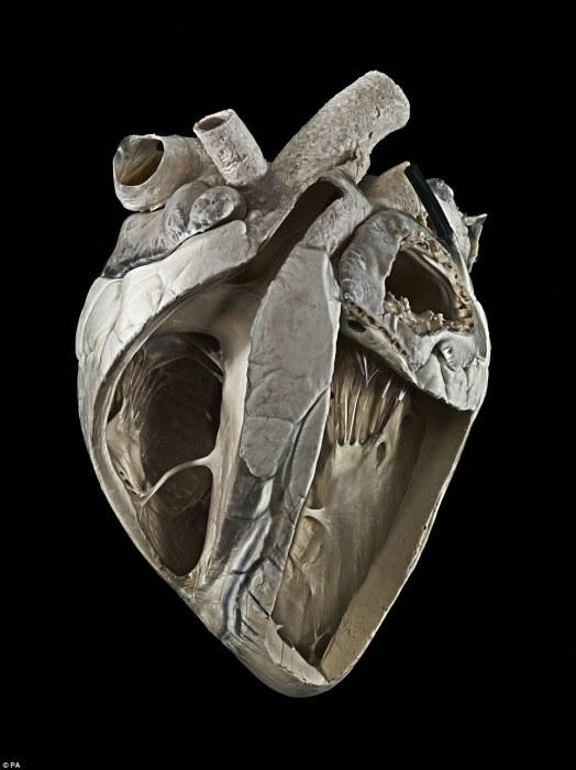 Сердце коровы, которое примерно в четыре раза больше человеческого сердца. Автор фотографии: Michael Frank.