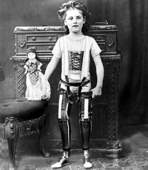 Протезирование ног - эта технология опередила свое время, 1900 год.