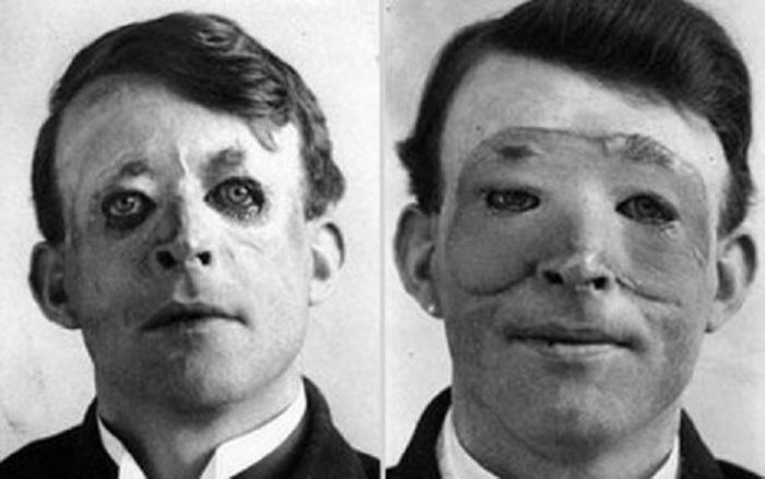 Имя человека, которого впервые в истории медицины прооперировал пластический хирург.