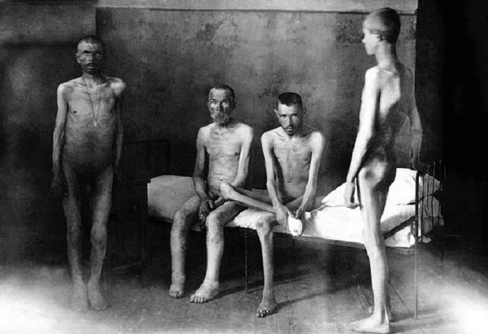 Истощённые голодом люди в одном из госпиталей.