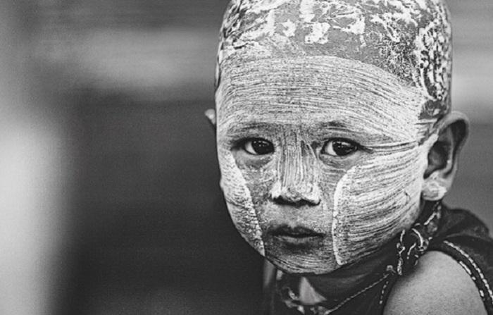Фотография ребёнка, родившегося во Вьетнаме.