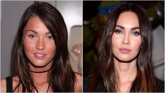 Американская актриса начала совершенствовать свою внешность с 18-летнего возраста и теперь стала признанной красавицей.