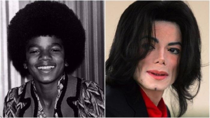 Король поп-музыки постоянно подвергал себя пластическим операциям, но все равно был недоволен собственной внешностью.