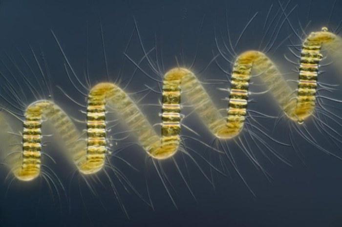 Колониальный организм планктона — Chaetoceros debilis, увеличен в 250 раз. Фотограф Вима ван Эгмонда из музея Микрополитен в городе Берке-ен-Роденжинис, Южная Голландия.