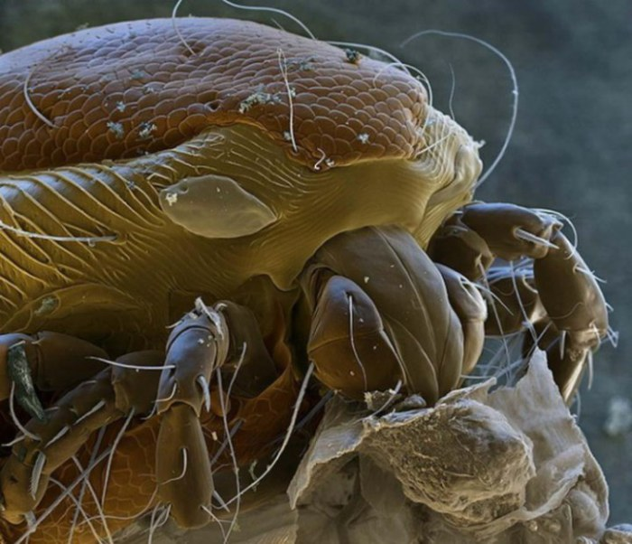 Клещ под микроскопом.