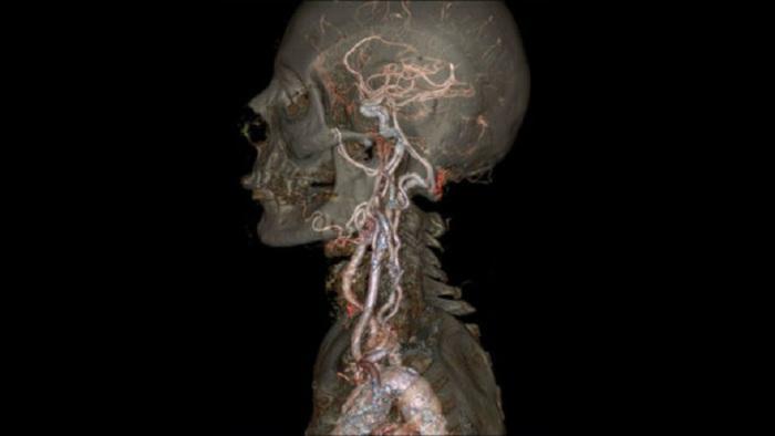 Трудно вообразить, какой точности достиг новый сканер для компьютерной томографии, выпущенный компанией Дженерал Электрик.