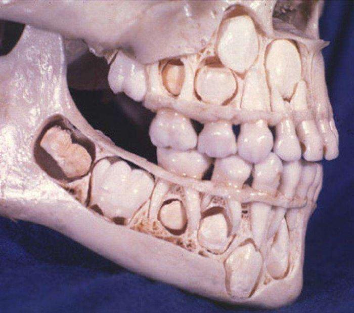 Череп ребенка до выпадения молочных зубов.